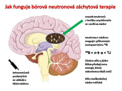 Znázornění principu fungování bórové neutronové záchytové terapie (kresba MD)